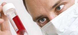 Как распознать ВИЧ-инфекцию