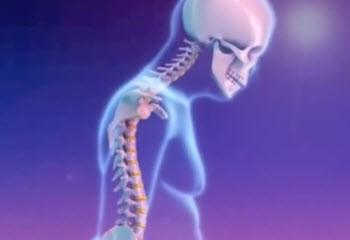 Эффективное средство от остеопороза
