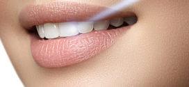Стоит ли делать отбеливание зубов?