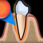 Пародонтоз - как лечить воспаление десен!