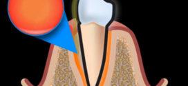 Пародонтоз — как лечить воспаление десен!